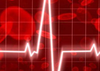 Aritmije srca povezane s povećanim rizikom od demencije