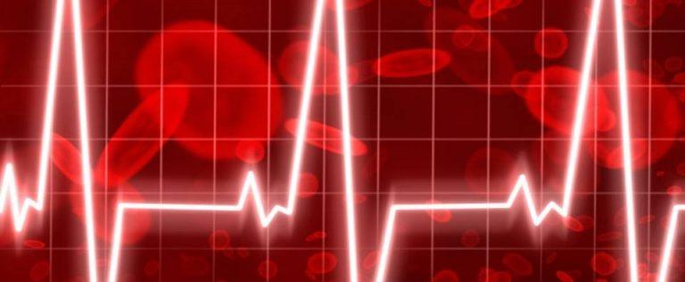 defibrilacija-atrija