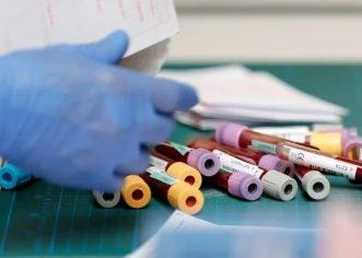 Njemačka počela testirati cjepivo na ljudima